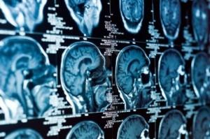 9486508-gros-plan-d-un-scanner-avec-le-cerveau