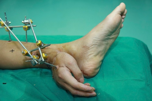 Impossible retour de la Falange Handout photo of Xiao Wei's severed right hand seen attached to his ankle before the reattachment surgery at Xiangya Hospital in Changsha